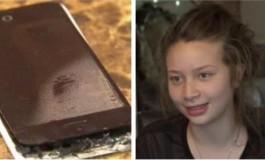 iPhone 5C Terbakar, Gadis 12 Tahun Alami Luka Bakar